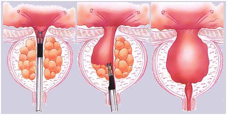 sovremennie-hirurgicheskie-metodi-lecheniya-adenomi-prostati