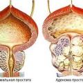 Аденома простаты: лечение и симптомы заболевания