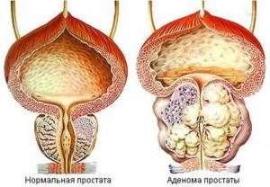 Аденома простаты в сравнении со здоровой
