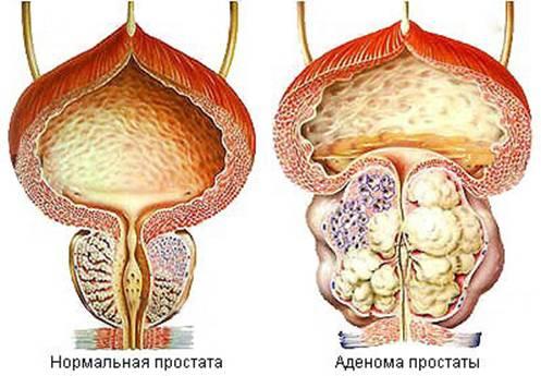 Аденома простаты: лечение аденомы предстательной железы
