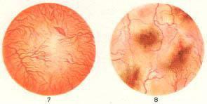 Цистоскопия, острый цистит