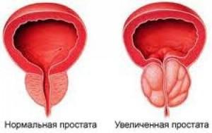 Увеличенная простата, хронический простатит