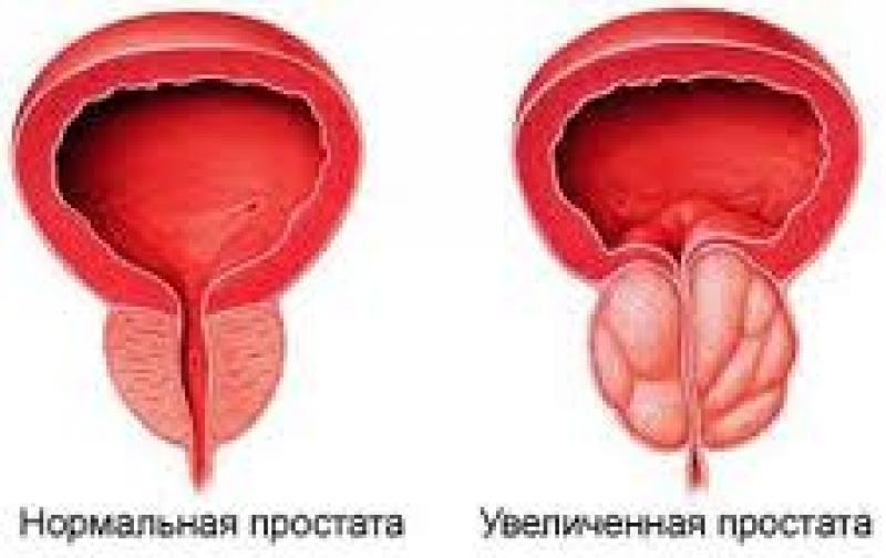 Соки простата лечение