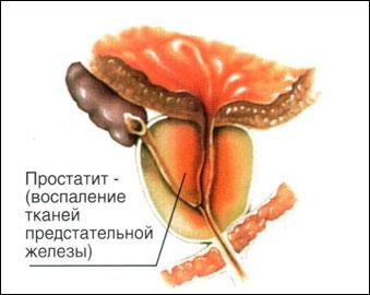 Секс в период лечения простатита