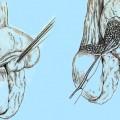 Киста яичка, лечение