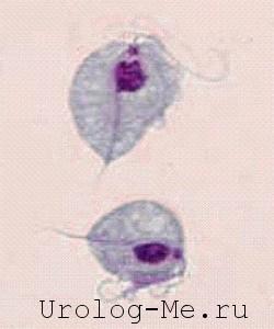 Трихомониаз, вид бактерии