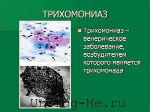 Трихомониаз, симптомы и признаки