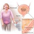 Симптомы цистита у женщин и мужчин и его признаки