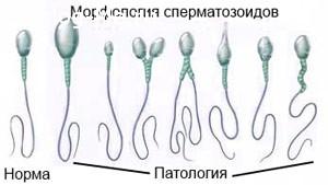 Норма и патология сперматозоидов