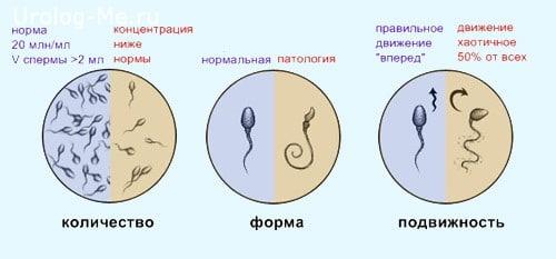 Как делаеца сперма фото 561-996