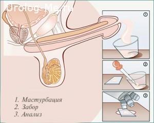 Как готовится спермограмма