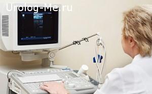 Диагностика полипов в матке