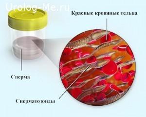 Кровь в сперме иллюстрация