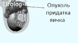 Опухоль придатка яичка