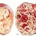 Рак яичка: его симптомы, признаки и способы лечения