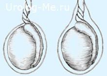 Перекрут яичка иллюстрация